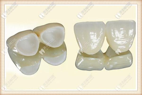 1000元的全瓷牙和1500的质量区别大吗,是否价格越贵越好?