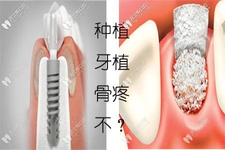 天哪!种植牙填骨粉太疼了?上门牙种植一定要植骨粉吗