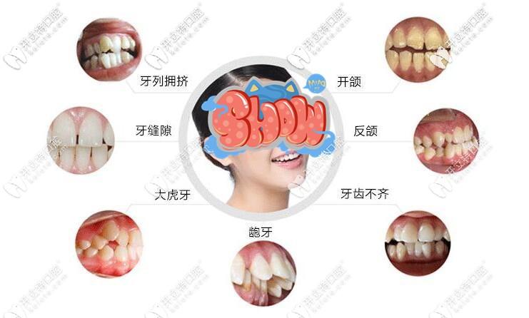 牙性牙列问题