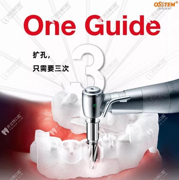 介绍:韩国奥齿泰IMPLANT种植牙数字化导板是干什么用的