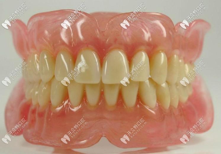 装假牙固定的好还是活动的好?全口的一般要多少钱