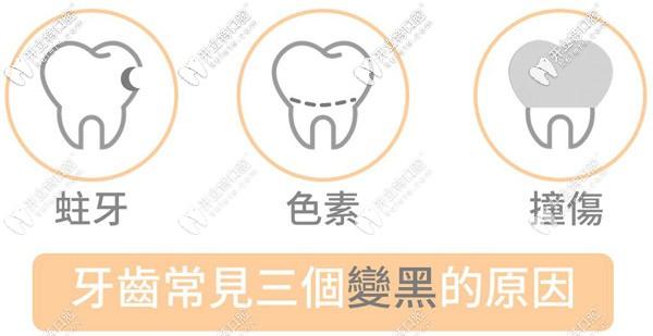 儿童牙齿黑斑是什么原因引起的,需要治疗吗?