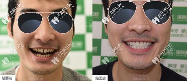 快速关闭牙缝,他选择在深圳美莱做了16颗Emax超薄全瓷贴面
