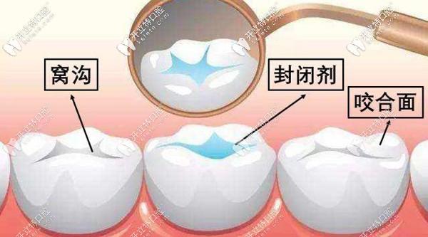 北京圣贝海淀牙科解锁儿童六龄齿窝沟封闭有必要做吗?