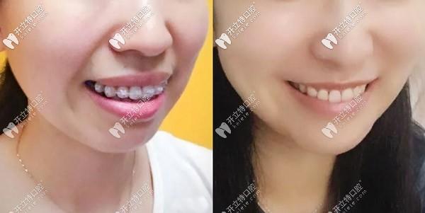 带了2年的陶瓷半隐形矫正终于把笑露牙龈的问题解决了