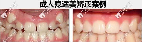 28岁顾客隐适美牙齿矫正前后
