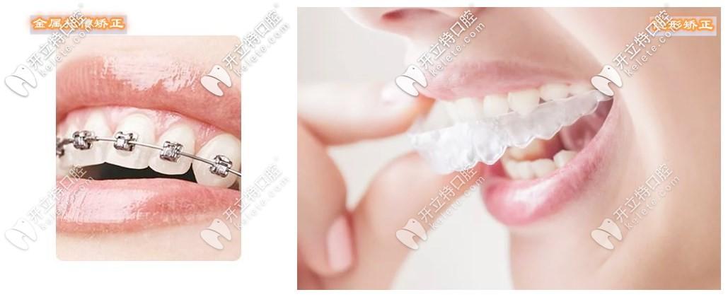 金属牙套和隐形牙套