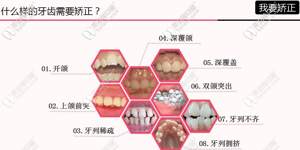 牙齿矫正适应症