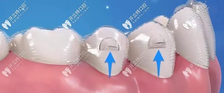 隐形牙套上的小附件