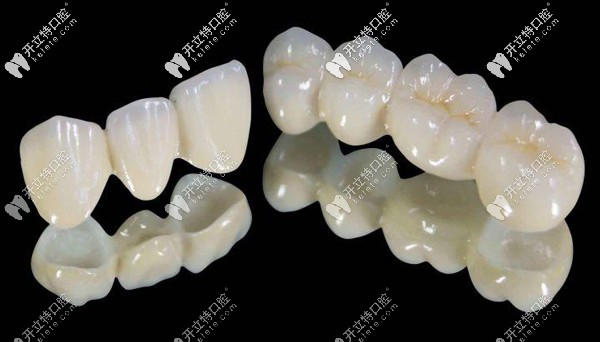 乐瓷全瓷牙价格是多少,怎么辨别德国乐瓷牙冠真假呢?