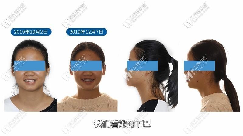 反颌偏颌正畸案例:21岁骨性地包天矫正后也可以很漂亮