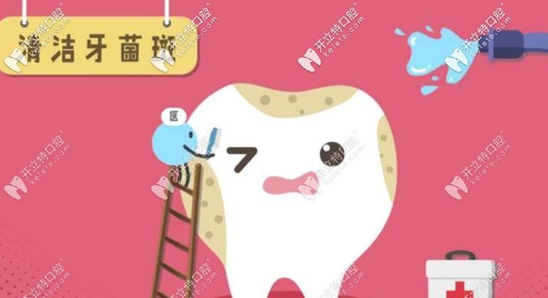 清洁牙菌斑