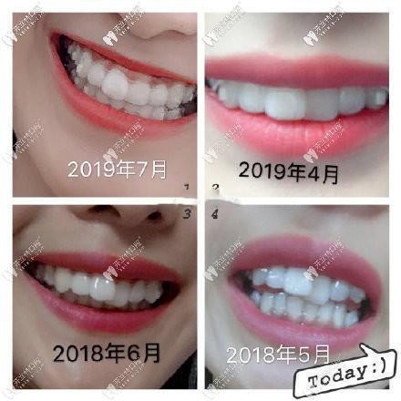 回忆自己门牙重叠错位,在重庆戴时代天使隐形牙套矫正效果