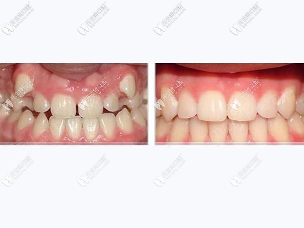 分享龅牙的我在武汉德韩口腔凯德西城店做隐适美矫正过程