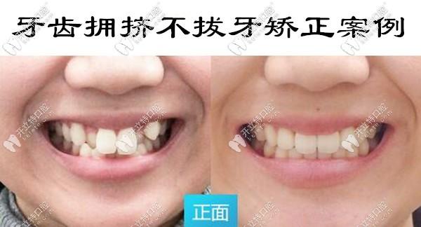 牙齿拥挤不拔牙矫正案例