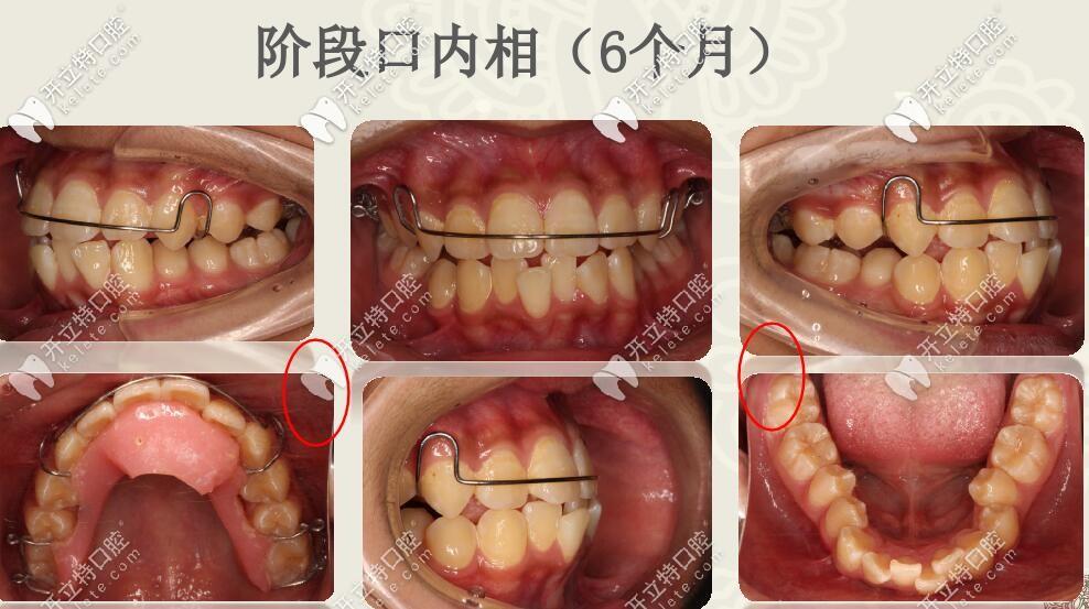 线圣贝口腔肌功能结合扩弓矫治案例