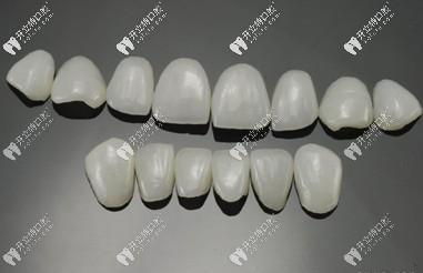 牙齿瓷贴面中的琥珀瓷和蓝瓷贴面区别大吗?哪个好?
