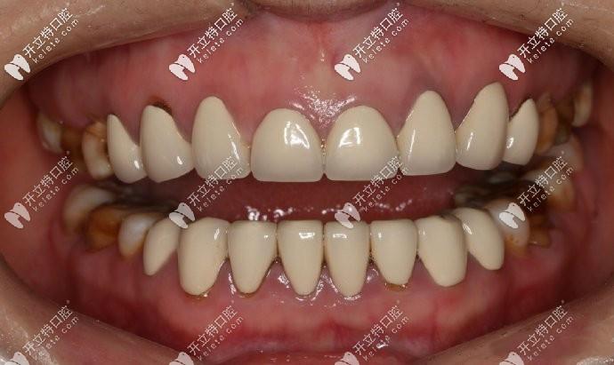 在小诊所做的全瓷牙,死白,没有一点美感可言