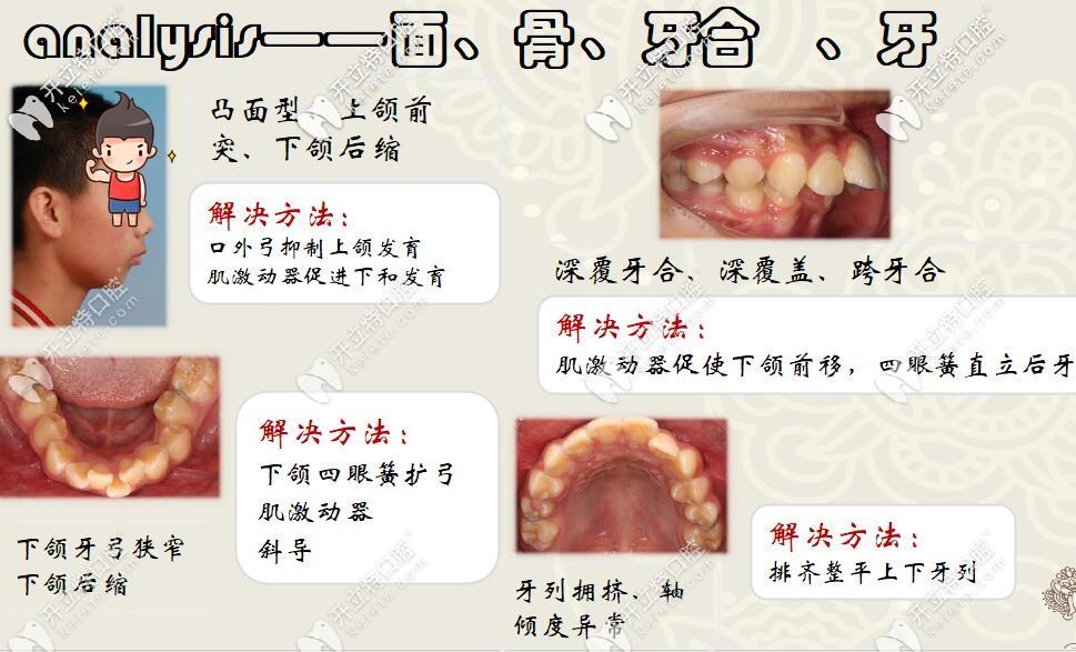 圣贝口腔何晓天医生龅牙矫治案例