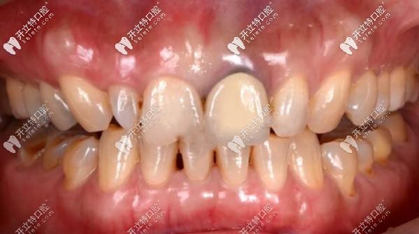 国产的爱尔创全瓷混合型颌贴面成功修复龋齿案例赏析