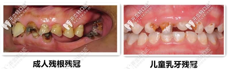 残根残冠拔除、儿童乳牙的残冠等症状图