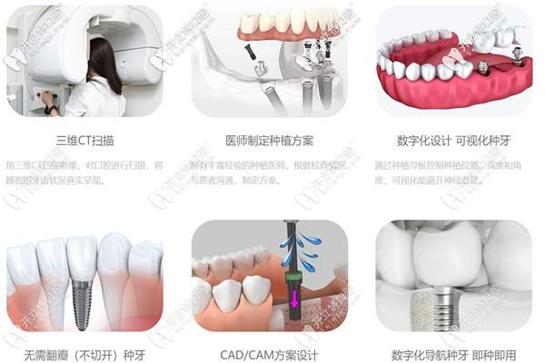微创种植牙的过程