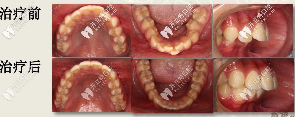 先圣贝牙科牙齿矫正案例