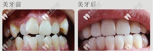 北京西尔口腔虎牙牙齿矫正价格私发你,附西尔口腔地址撒~