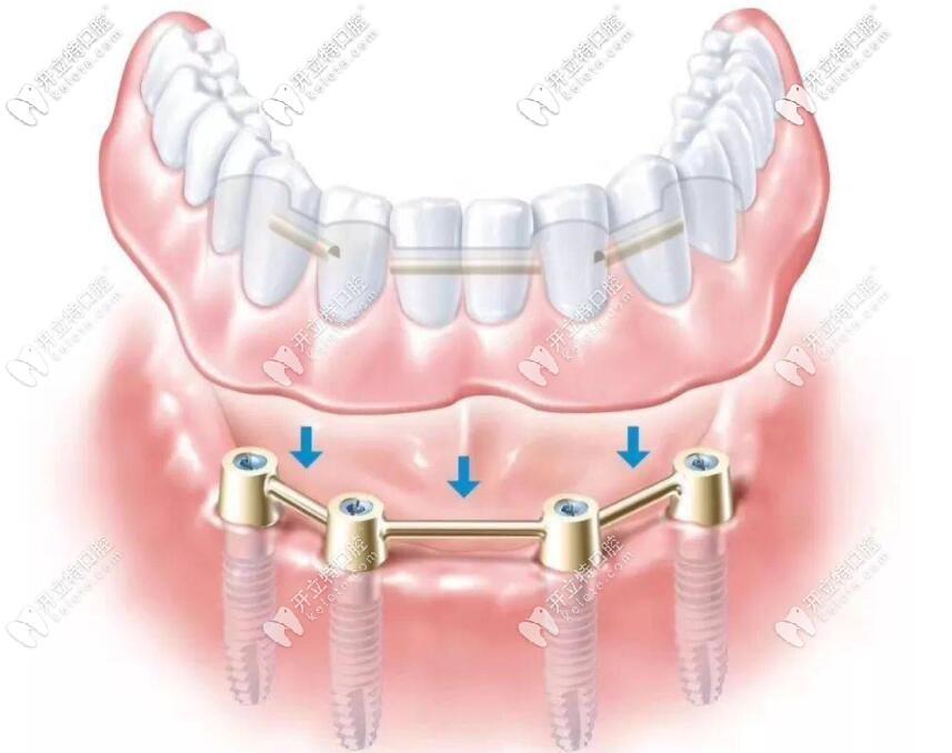 半口半固定牙
