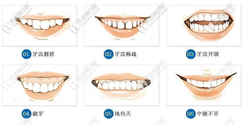 牙齿矫正的适应症状