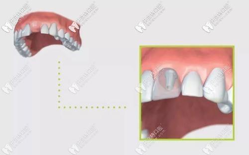 """可以避免牙周被破坏的种植牙新技术""""盾构术""""了解一下?"""