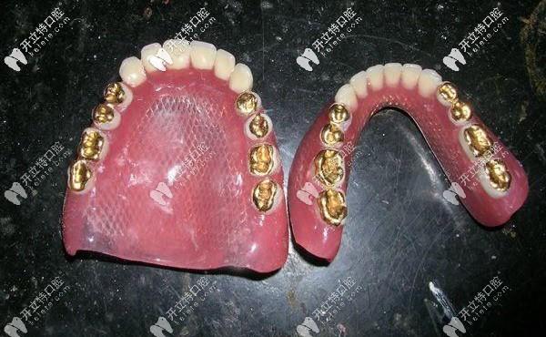 满口牙周病想镶牙,请问活动假牙中的钛合金和纯钛区别大吗