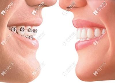 听说濮阳矫正牙齿比较好的医院是这两家,还有正畸价格表哦