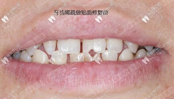 做了美加全瓷超薄贴面,给牙缝大+瓜子牙统统说Goodbye