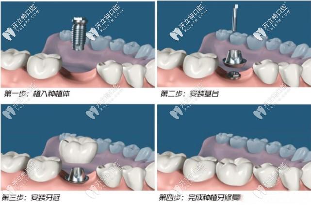 种植牙的简单步骤