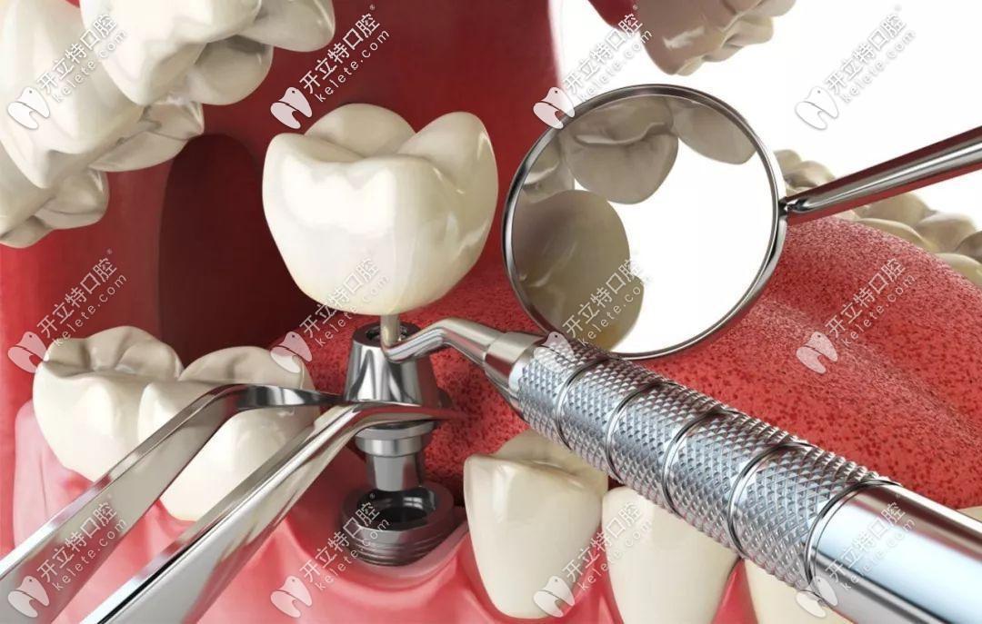 种植牙结构示意图