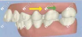 金属自锁牙套可以磨牙后推吗?磨牙后移只有隐形牙套可以做?