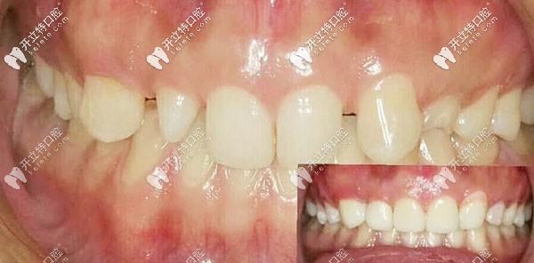 这有吕梁春珍齿科马茂庄店的-国产氧化锆全瓷牙案例