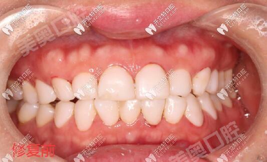 美容院做的5D浮雕牙贴面真坑,感谢西安美奥口腔拆除修复好
