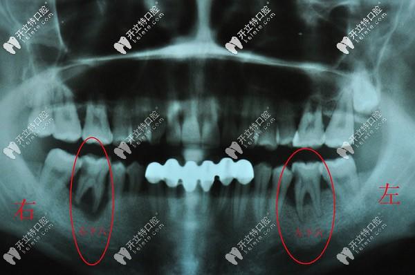 分享一则三度松动牙齿拔除的病例,都是重度牙周炎惹的祸