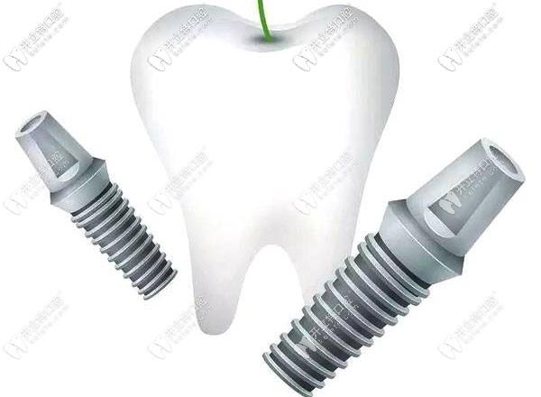 三颗牙掉了需种植几颗牙根?可否用2颗种植体装三个牙冠呢