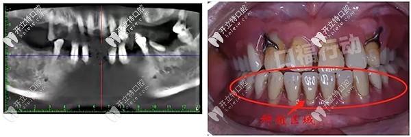 昆明美奥口腔allon4半口种植牙案例分享:牙周病残根也能修复