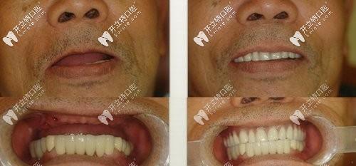 上半口缺牙后做半口即刻负重种植牙