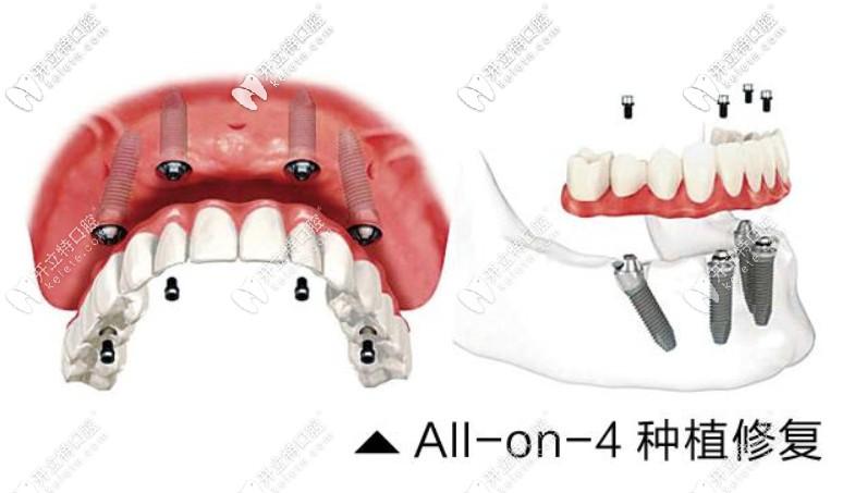 Allon4种植牙技术