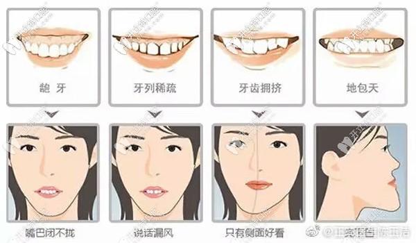 探寻南京河西金鹰美奥口腔陈玉洁医生做牙齿矫正技术如何