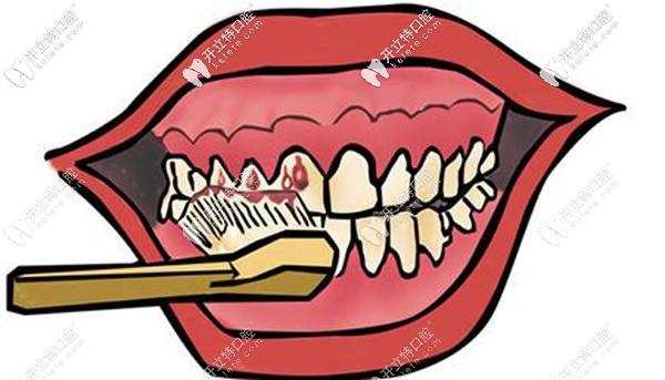 6D纳米浮雕牙好卸吗,可参考6d纳米浮雕牙卸掉视频