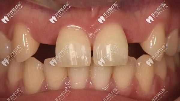 前牙区用瑞士士卓曼Variobase AS基台做即刻种植牙修复的案例
