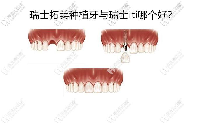 瑞士拓美种植牙15000的价格贵不贵,thommen与瑞士ITI哪个好