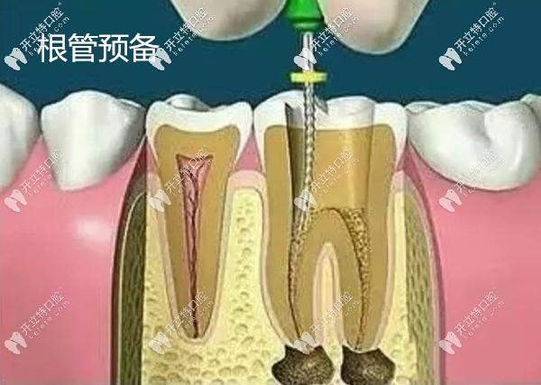 高清版牙齿根管治疗过程的视频,告诉你多久能完成治疗