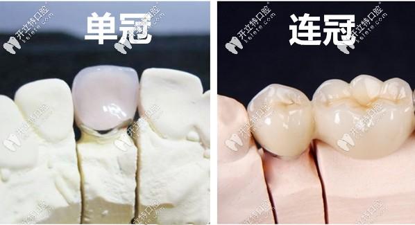 说下在广州华医口腔做完连冠全瓷牙和单冠全瓷牙的心得